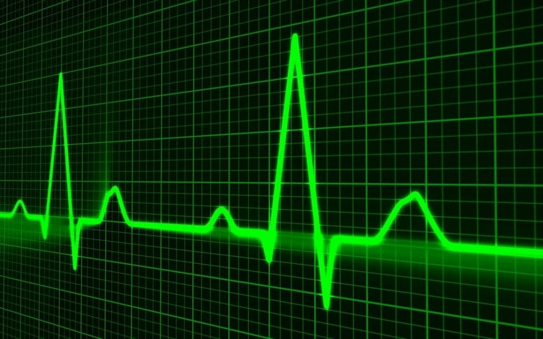 What is Supraventricular Tachycardia (SVT)?